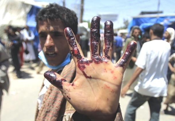 درخواست سازمان جهانی نفی خشونت از طرفین جنگ در یمن برای ترک جنگ و احترام به سیادت متقابل
