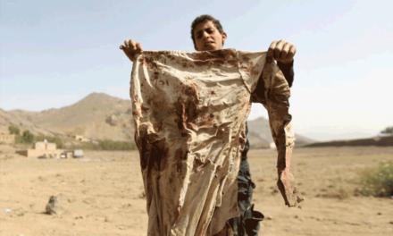 سازمان جهانی نفی خشونت: جنگ و کشتار در یمنِ خونین پیکر باید متوقف و گفتگوی صلح و آشتی شروع شود